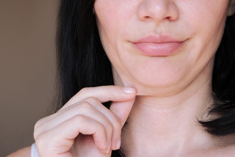 enlever la graisse de la peau