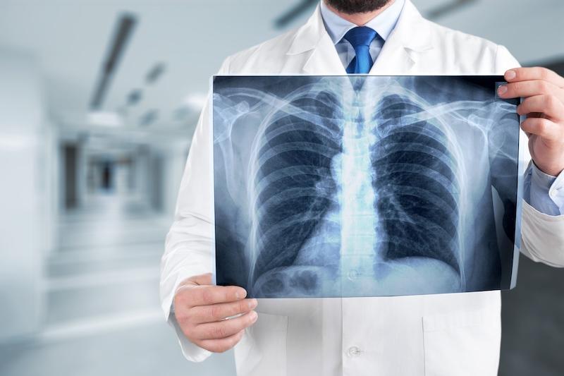 la graisse s'évacue par les poumons