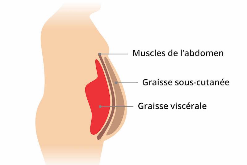 obésité abdominale régime
