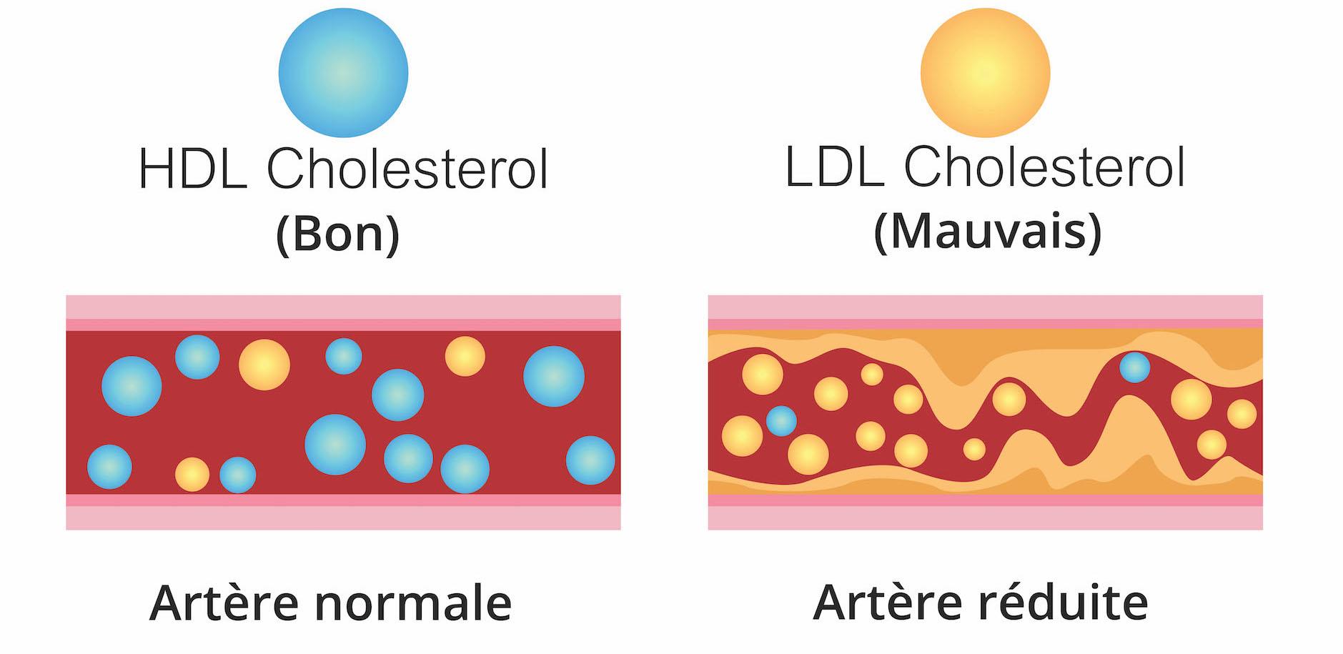 cholesterol bon mauvais