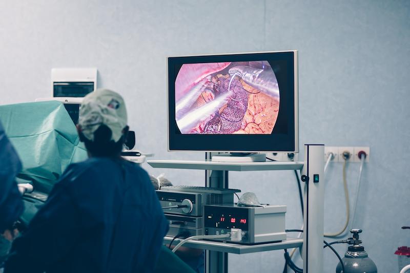 le changement de poids post-opératoire